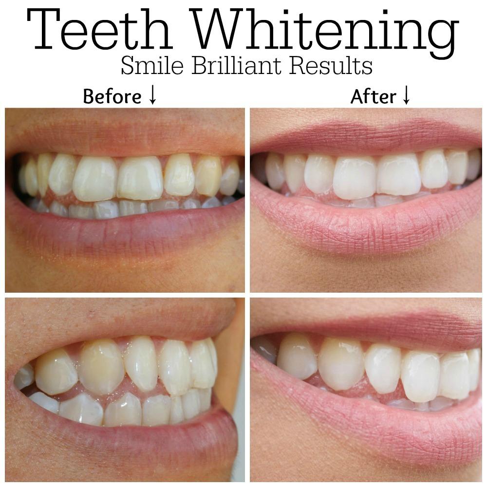 smile brilliant results